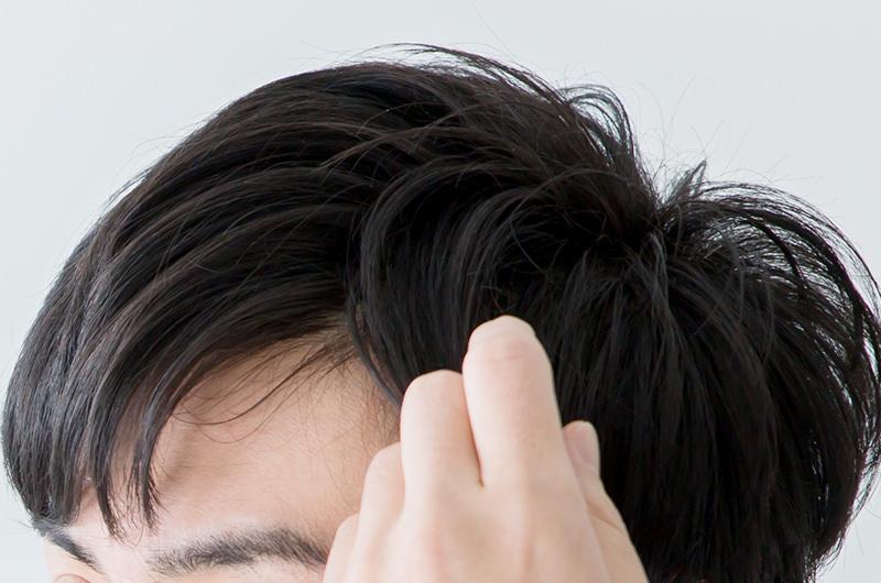 進行性の脱毛症・放置するとどんどん毛髪が薄くなります